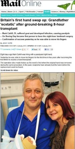 Homem recebe transplante de mão e já consegue movimentar os dedos