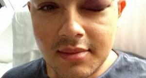 Disseram que iam me matar, afirma gay espancado na frente de escola no interior de SP